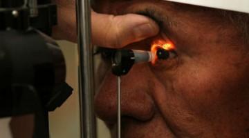 Arteritis es una enfermedad que puede causar ceguera si no se determina a tiempo y sus efectos son permanentes.